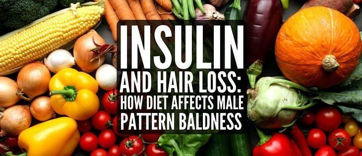 Insulin Resistance Hair Loss Reversible