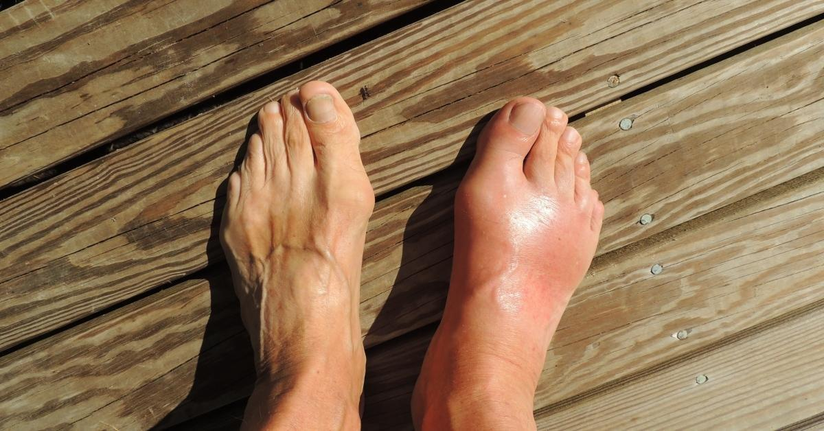 Can Gout Lead To Diabetes