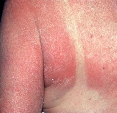 Metformin And Sunburn