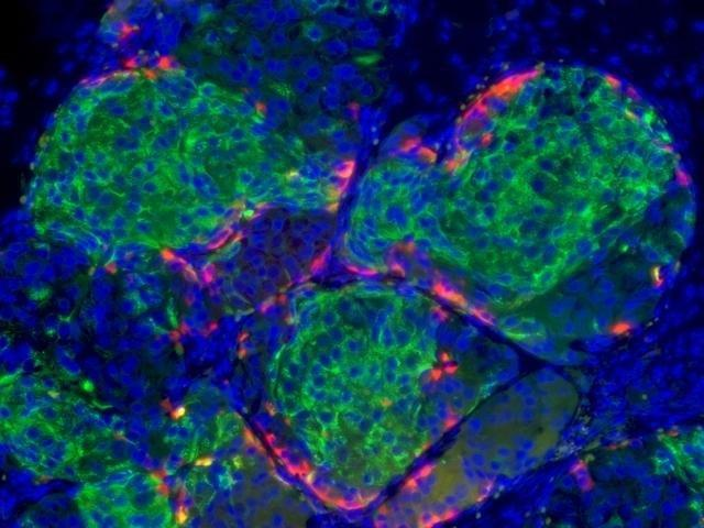 Insulin Producing Cells