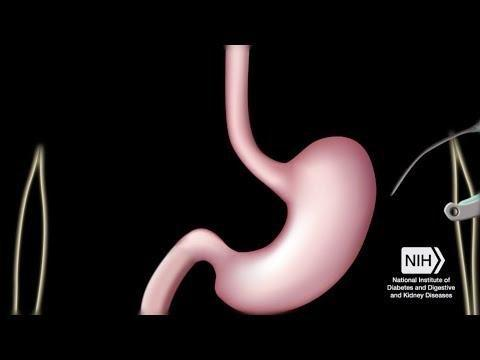 National Institute Of Diabetes And Digestive And Kidney Diseases 2017