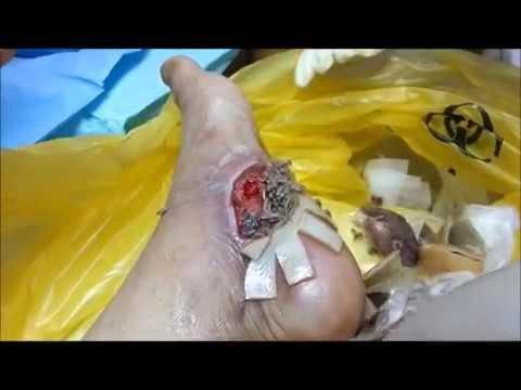 Diabetic Wound Healing Process