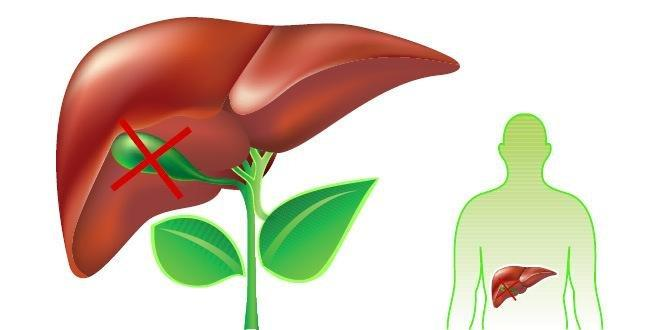 Things You Must Know If You Dont Have A Gallbladder
