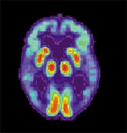 Is Alzheimer's Disease Actually A Form Of Diabetes?