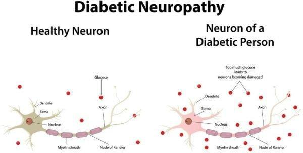 What Does Diabetes Affect In The Body?