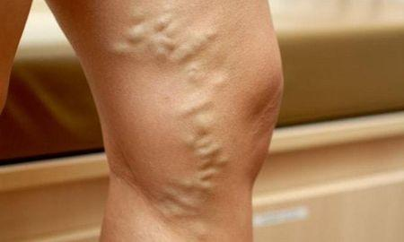 Does Diabetes Cause Varicose Veins? What's The Connection