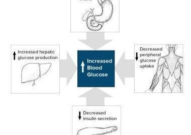 Insulin Dependent Diabetes Type 2