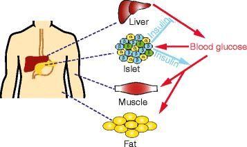 Insulin Deficiency Diabetes