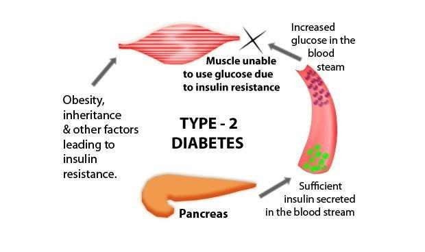 Short Term Effects Of Type 2 Diabetes