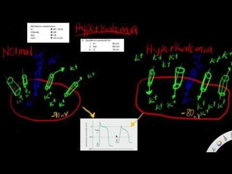 Why Does Hyperkalemia Cause Acidosis?
