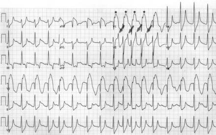 St-segment Elevation Resulting From Hyperkalemia