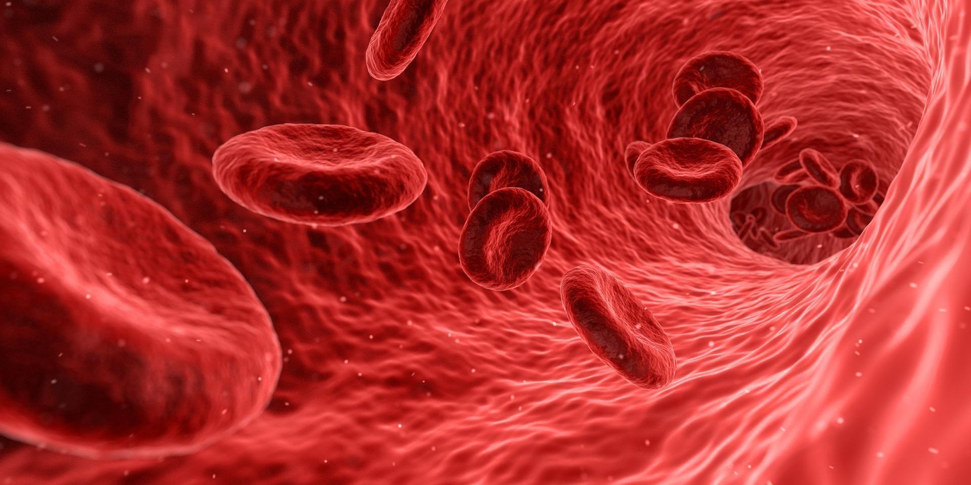 Can Diabetes Cause Low Hemoglobin