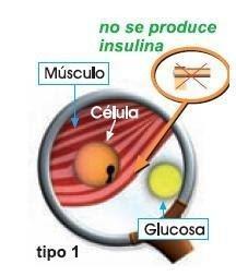 Diabetes: Diabetes: Tipos Y Caracteristicas