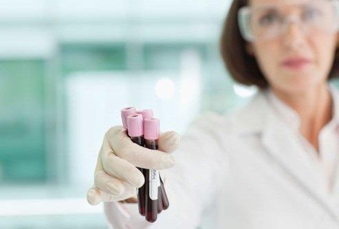 Blood Sugar Balance Supplements