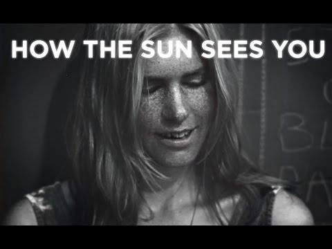 Diabetes And Sun Exposure