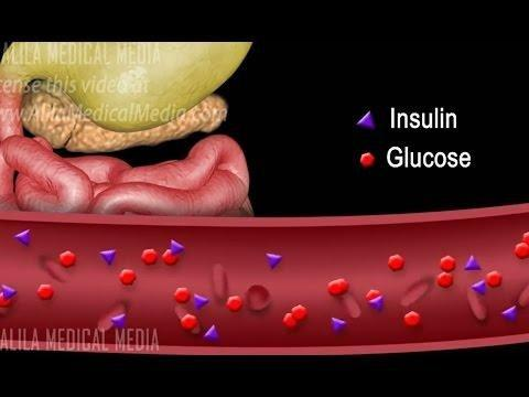 Diabetes Can Strike—hard—even When Weight Is Normal