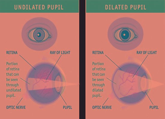 What Is A Comprehensive Dilated Eye Exam?