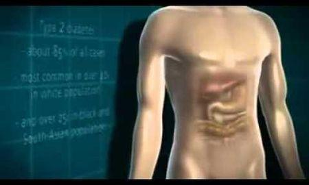 What Is It Diabetes Mellitus?