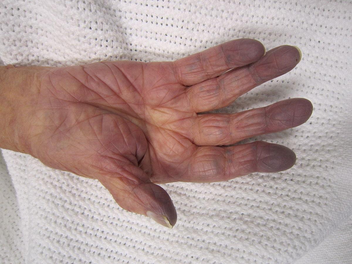 Hypoxia (medical) - Wikipedia