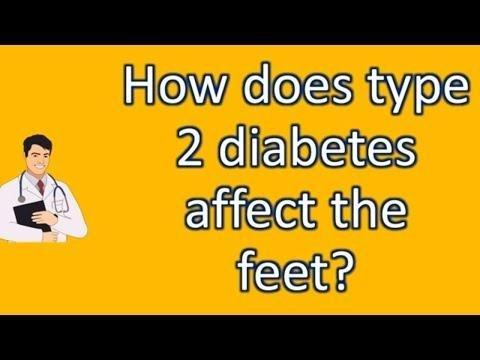 How Does Type 2 Diabetes Affect The Feet?