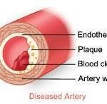 Cholesterol In Blood Vessels – Cause And Cure