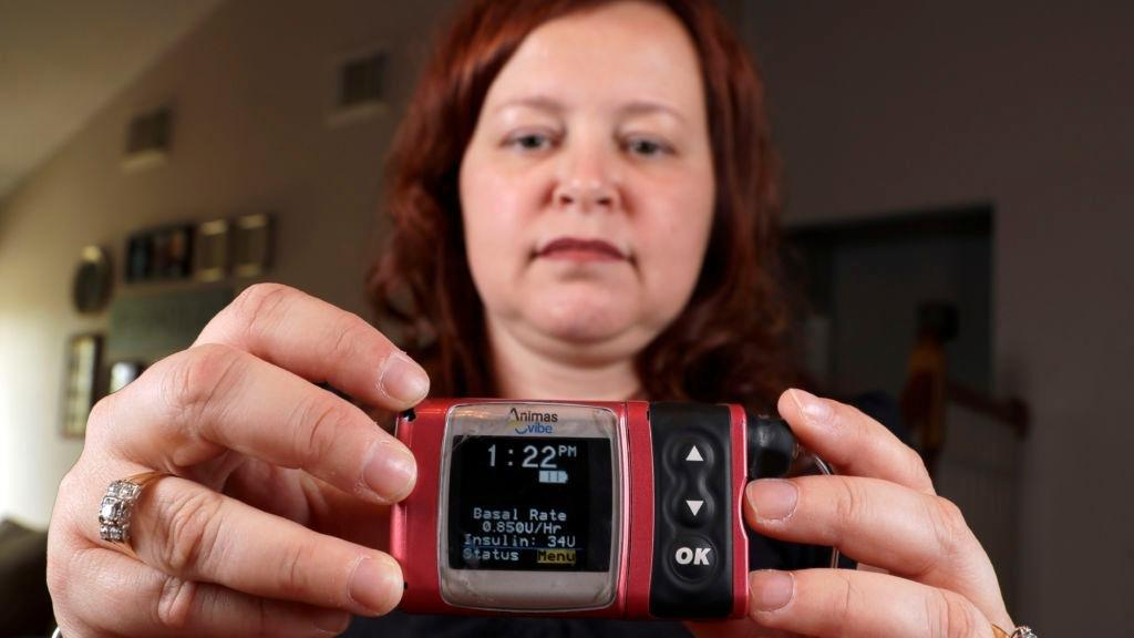 How Much Insulin Pump Cost