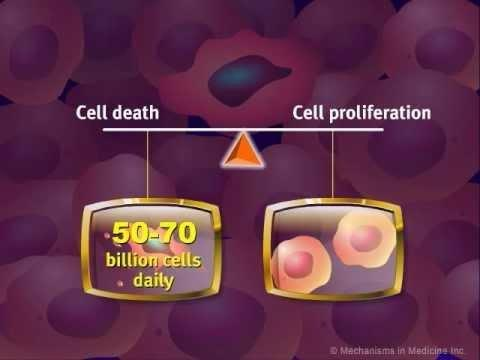 Cancer Cells And Insulin Receptors