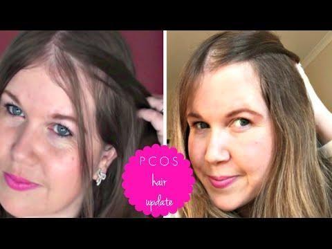Januvia And Hair Loss