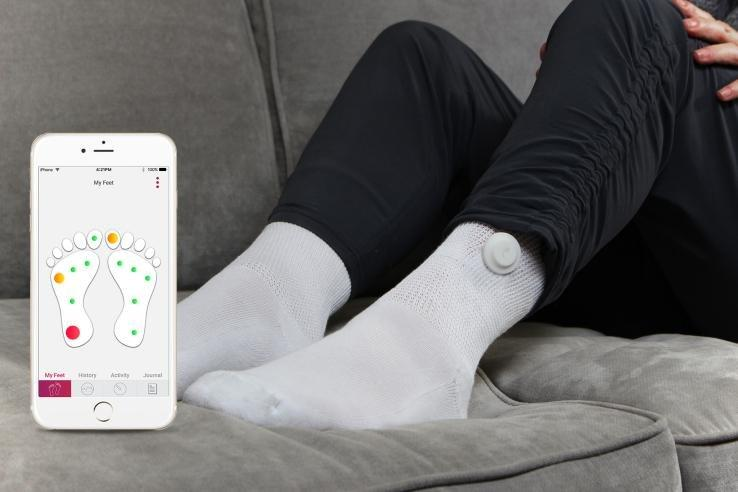 "Siren Care Makes A ""smart"" Sock To Track Diabetic Health"
