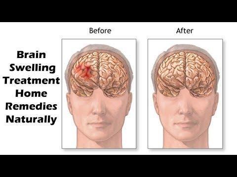 Signs And Symptoms Of Cerebral Edema In Dka