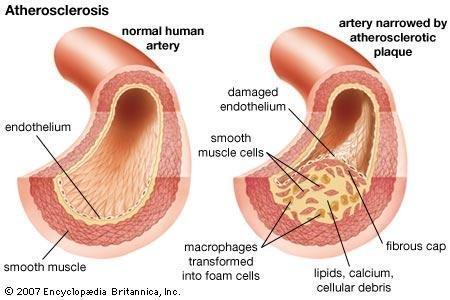Atherosclerosis | Pathology | Britannica.com