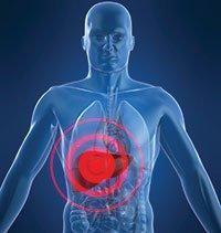 Liver Dump Non Diabetic