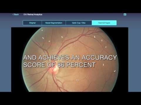 Mobile Diagnosis Of Diabetic Retinopathy Using Deep Learning