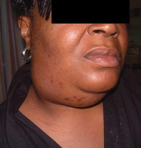 Can Diabetes Cause Swelling In Face Diabetestalk Net