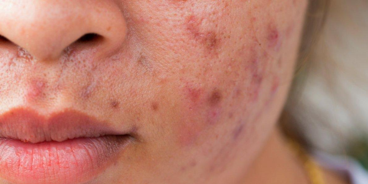Foods That Might Be Giving You Acne