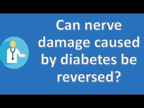 Can You Have Diabetic Nerve Pain And Not Have Diabetes?