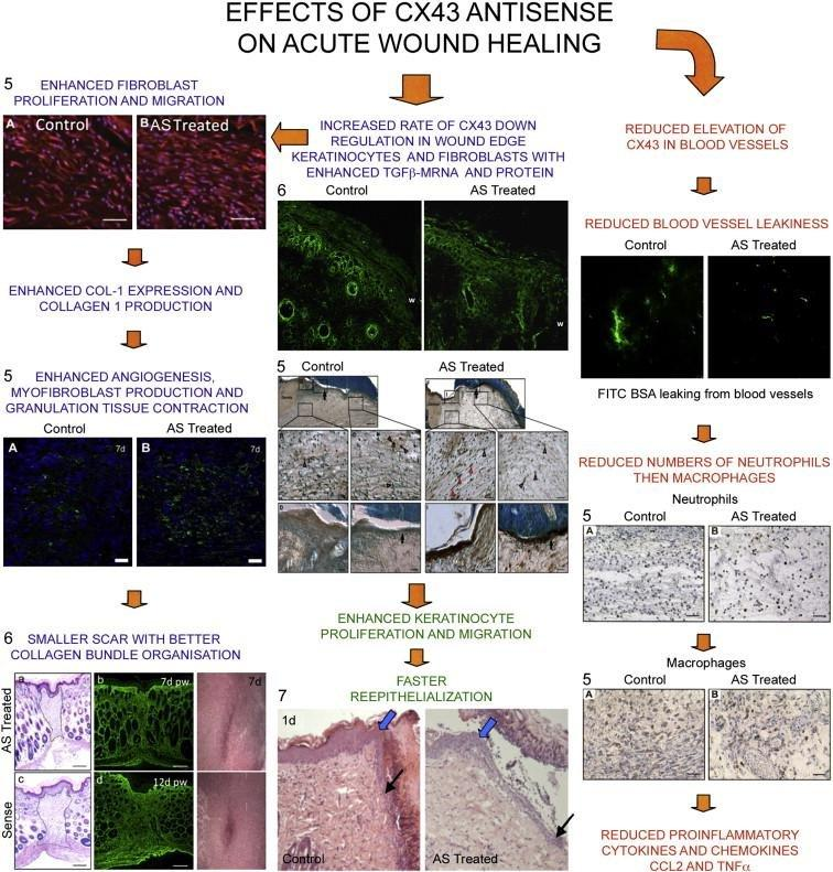 How Diabetes Affects Wound Healing