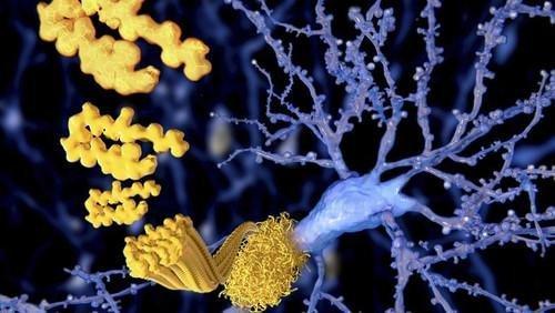 Diabetes Drug Halts Alzheimers
