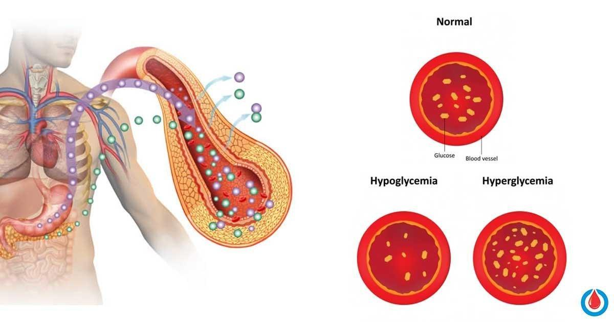 Difference Between Diabetes And Hyperglycemia