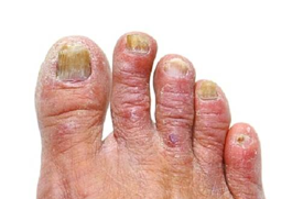 Diabetic Toe Nails