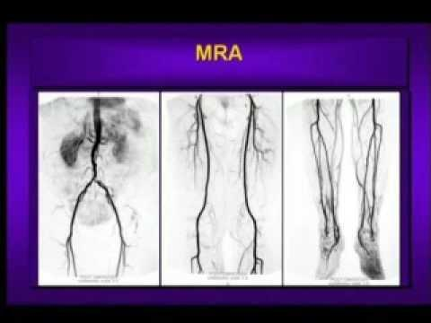 How Does Diabetes Cause Peripheral Vascular Disease