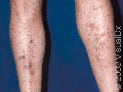 Dark Spots On Legs Diabetes