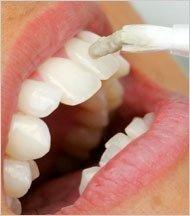 How Does Diabetes Cause Periodontal Disease?