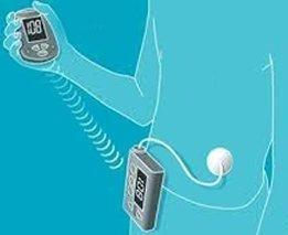 Amrita Insulin Pump And Low-cost, Automated Biomedical Devices