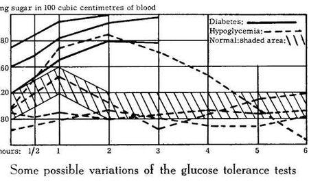 Iron Deficiency And Blood Sugar