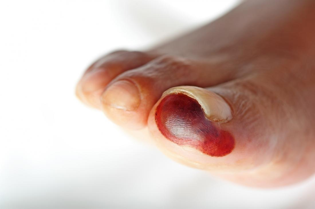 What You Need To Know About Gangrene