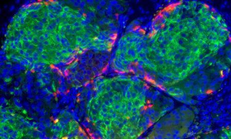 Harvard Stem Cell Research May Cure Type 1 Diabetes