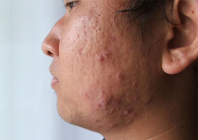 The Secret To Outsmarting Your Acne