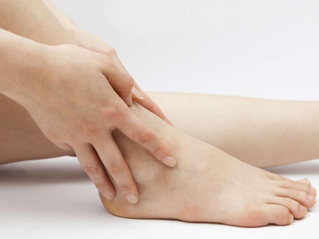 Rash Around Ankles Diabetes