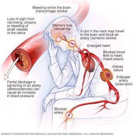 How Does Diabetes Damage Arteries